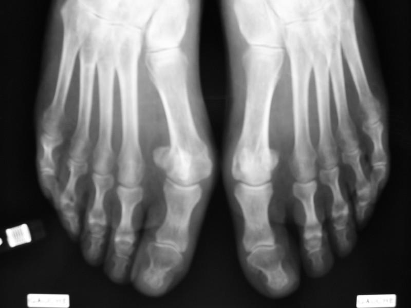 arthrose du pied